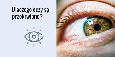 Dlaczego oczy są przekrwione?